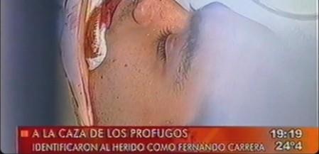 El rostro de Fernando Carrera, tomado por las  cámaras de televisión minutos después de ocurrir los hechos